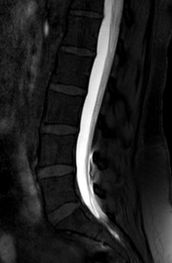 mri_myelography_with_intrathecal_contrast_cropped.jpg